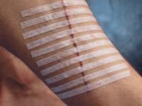Полоски для бесшовного сведения краев кожной раны 12×100мм